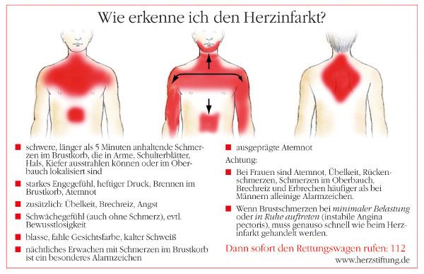 Die Deutsche Herzstiftung hat Anzeichen und Beschwerden, die auf einen Herzinfarkt hindeuten können, zusammengefasst. Diese Symptome nicht zu unterschätzen, kann Leben retten. Foto: www.herzstiftung.de