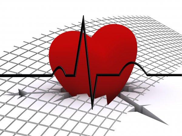 23.073 Menschen starben 2014 im Freistaat Sachsen an Erkrankungen des Herz- und Kreislaufsystems. Foto:  pixabay.com